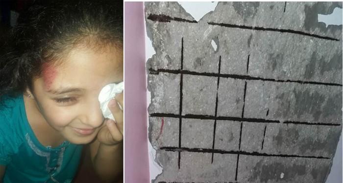 الطفلة آية بعد انهيار جزء من سقف منزلها