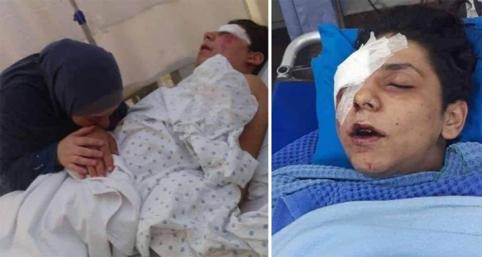 الطفل المصاب يحيى مع والدته