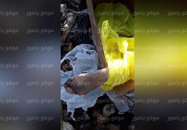 ساق بشرية مبتورة في بيروت